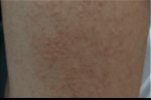 毛孔性苔癬img